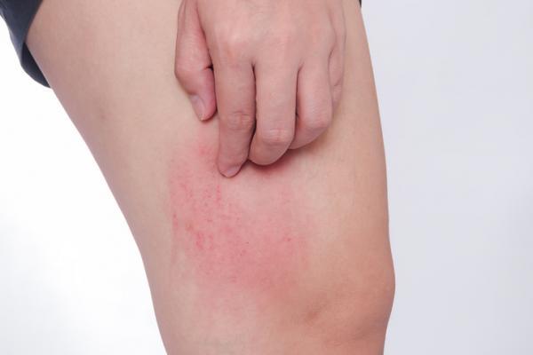 quitar los granitos de las piernas